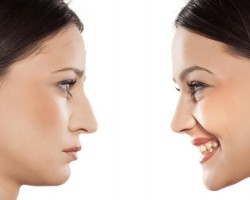 Find Reliable Revision Rhinoplasty in Boston